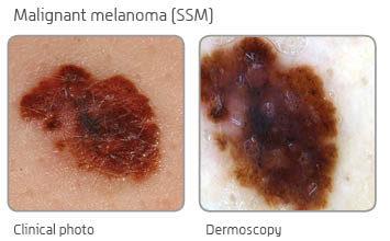 Nevisense - a breakthrough in non-invasive detection of melanoma